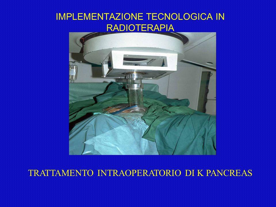 IMPLEMENTAZIONE TECNOLOGICA IN RADIOTERAPIA