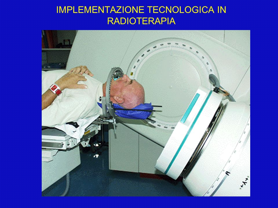 IMPLEMENTAZIONE TECNOLOGICA IN RADIOTERAPIA