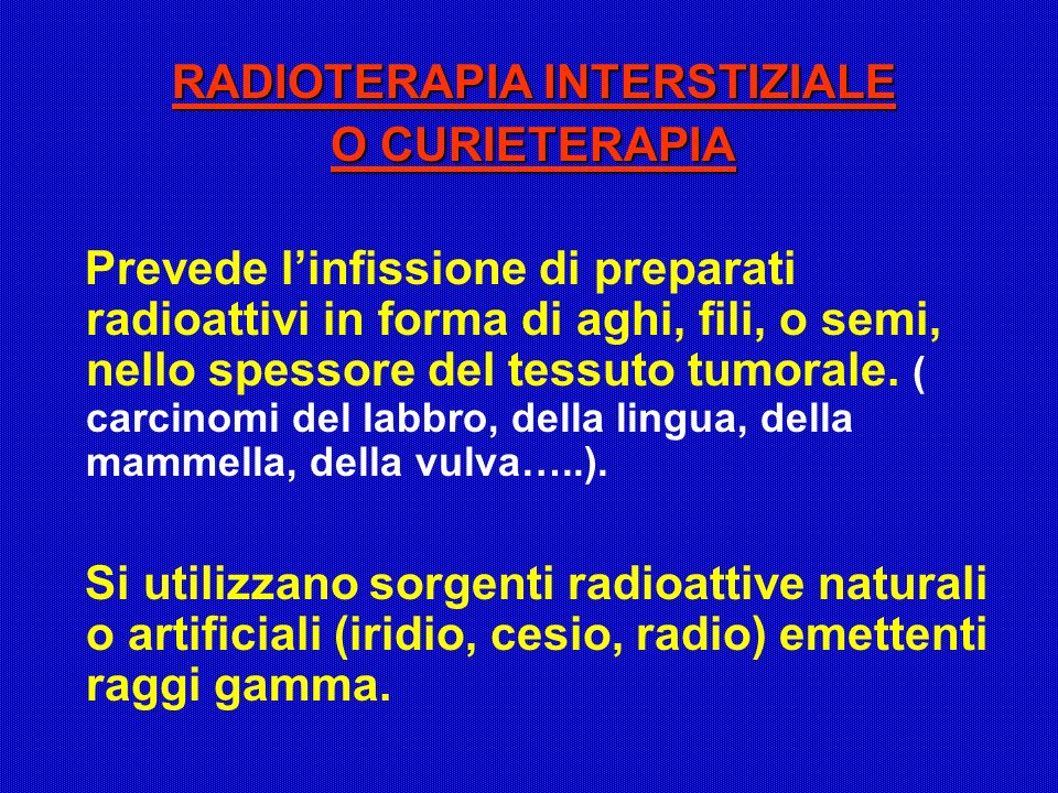 RADIOTERAPIA INTERSTIZIALE