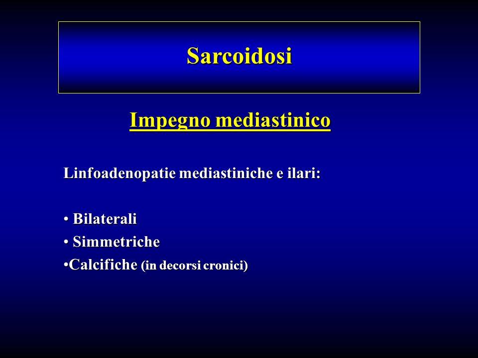 Sarcoidosi Impegno mediastinico Linfoadenopatie mediastiniche e ilari: