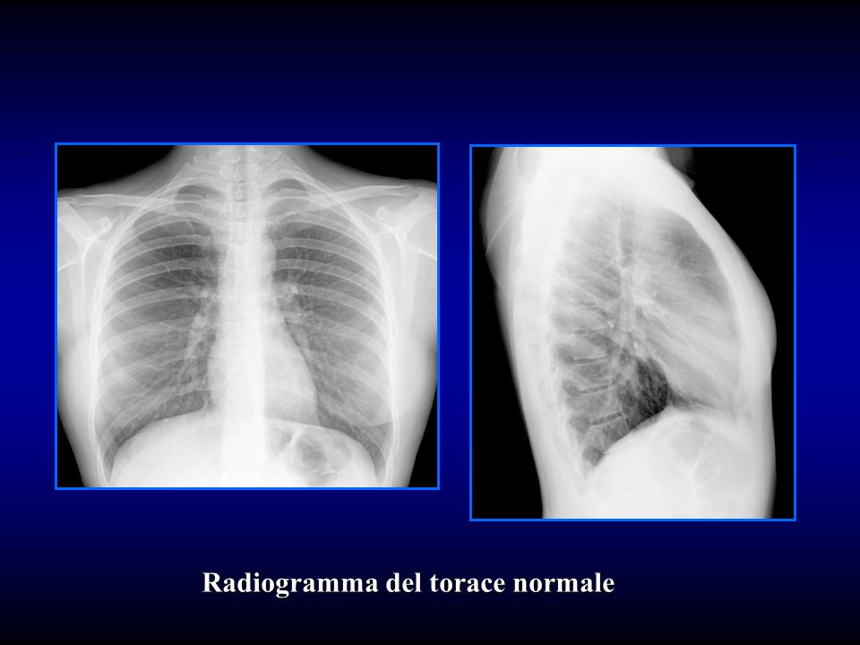 Radiogramma del torace normale