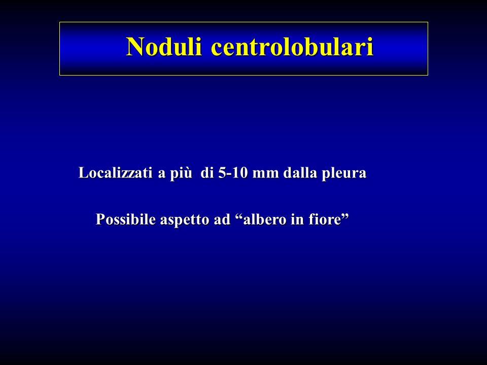 Noduli centrolobulari