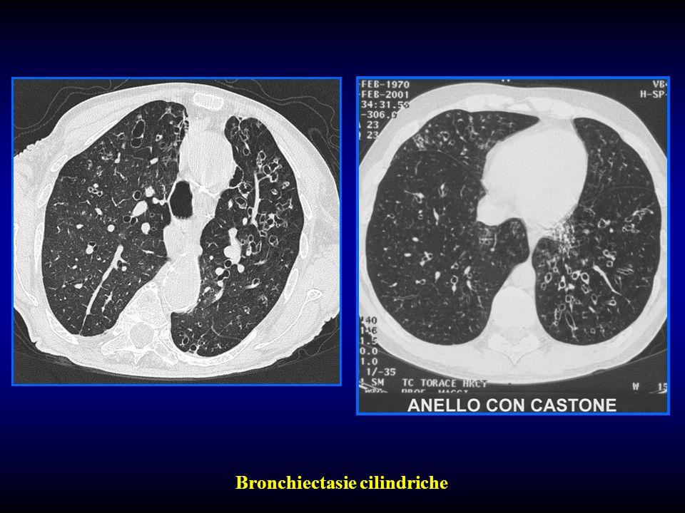 Bronchiectasie cilindriche