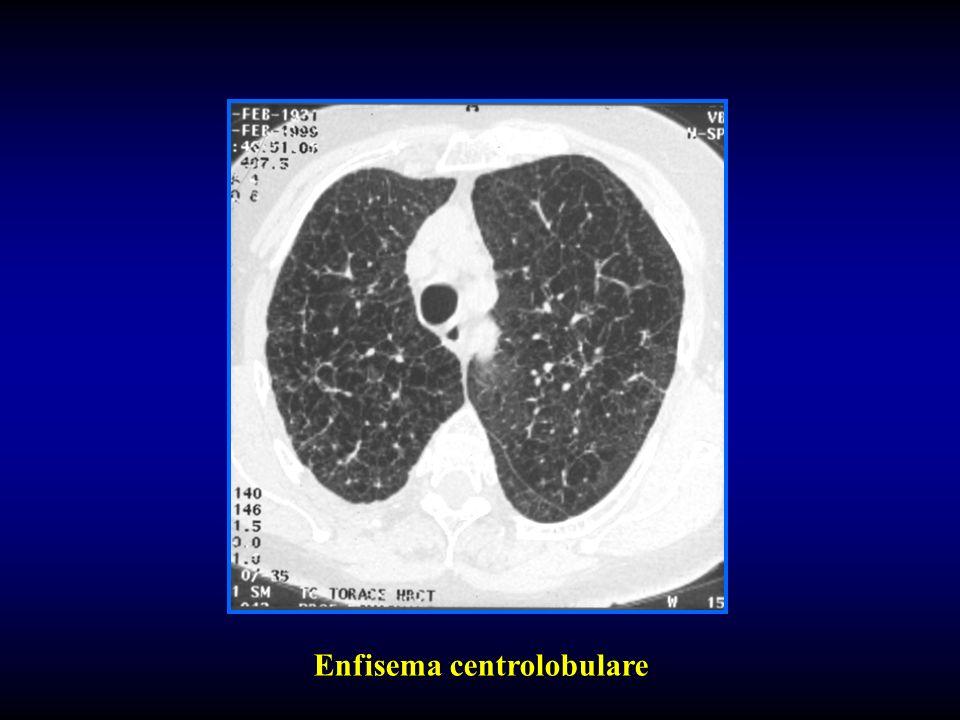 Enfisema centrolobulare