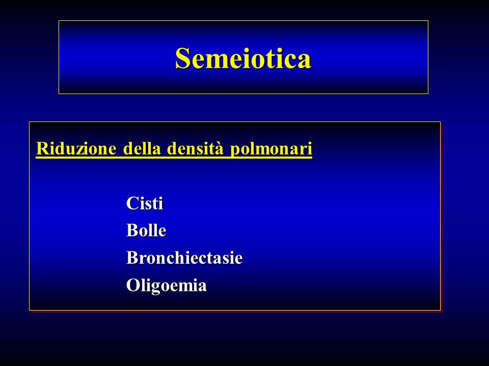 Semeiotica Riduzione della densità polmonari Cisti Bolle