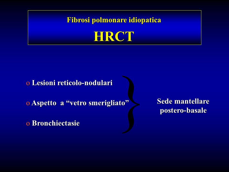 Fibrosi polmonare idiopatica Sede mantellare postero-basale