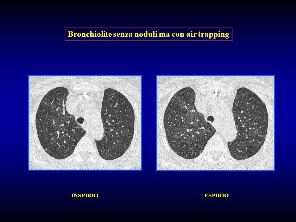 Bronchiolite senza noduli ma con air trapping