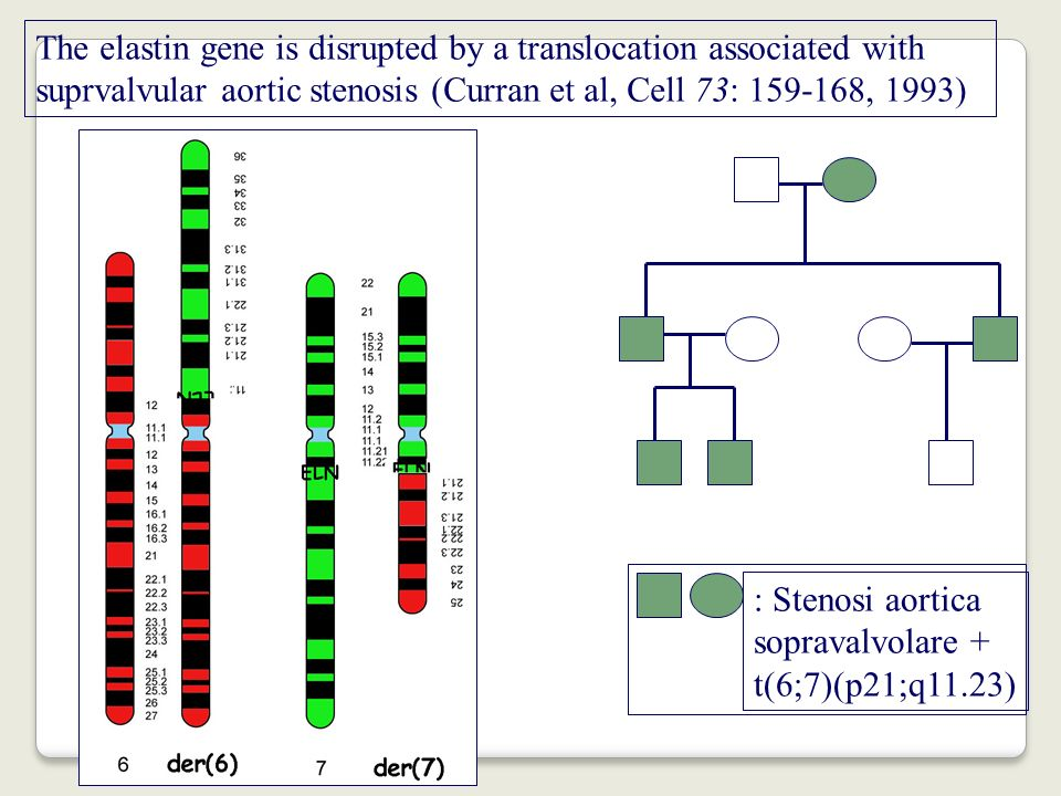 : Stenosi aorticasopravalvolare + t(6;7)(p21;q11.23) The elastin gene is disrupted by a translocation associated with.