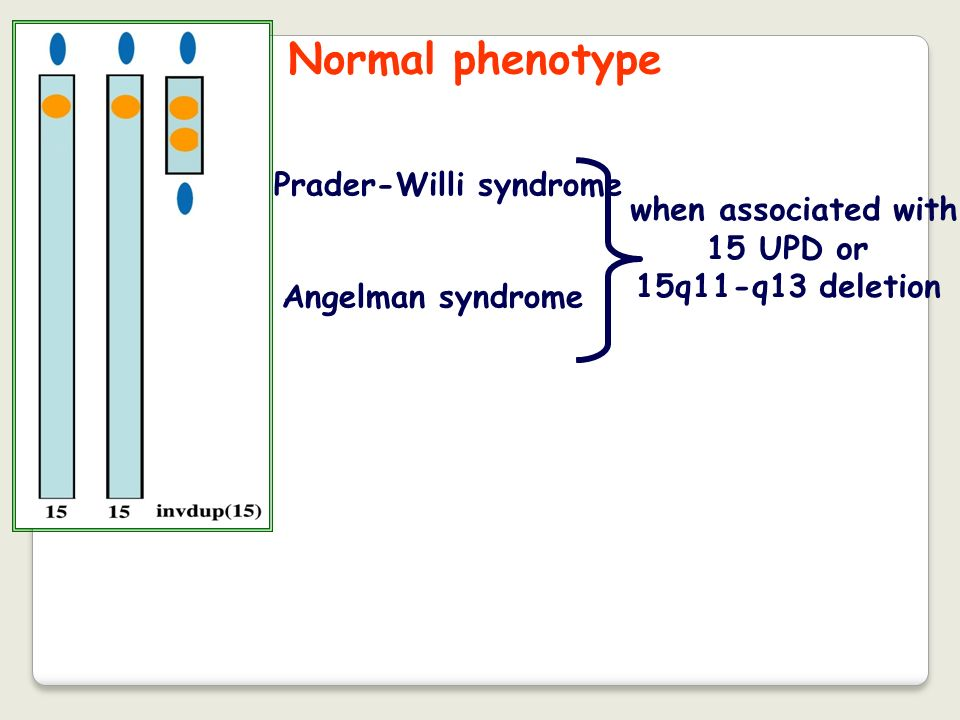 Normal phenotype Prader-Willi syndrome when associated with 15 UPD or
