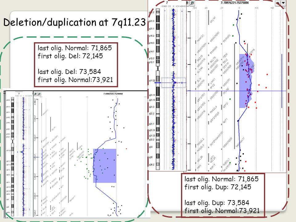 Deletion/duplication at 7q11.23