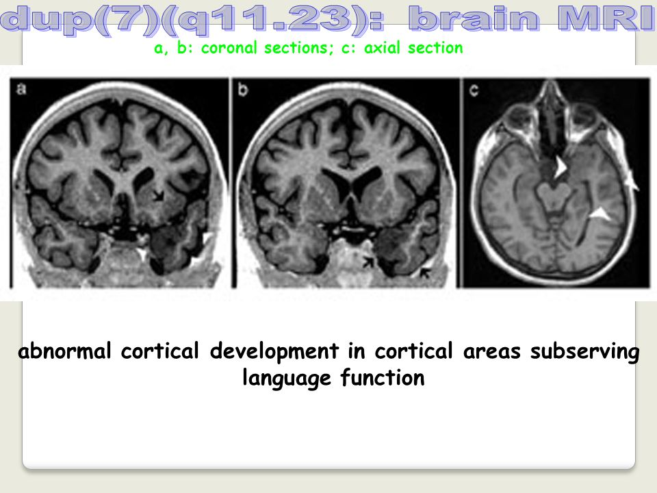 abnormal cortical development in cortical areas subserving