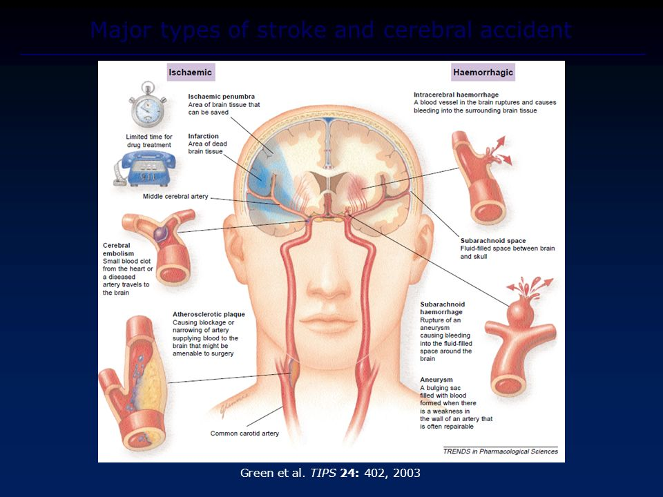 Major types of stroke and cerebral accident