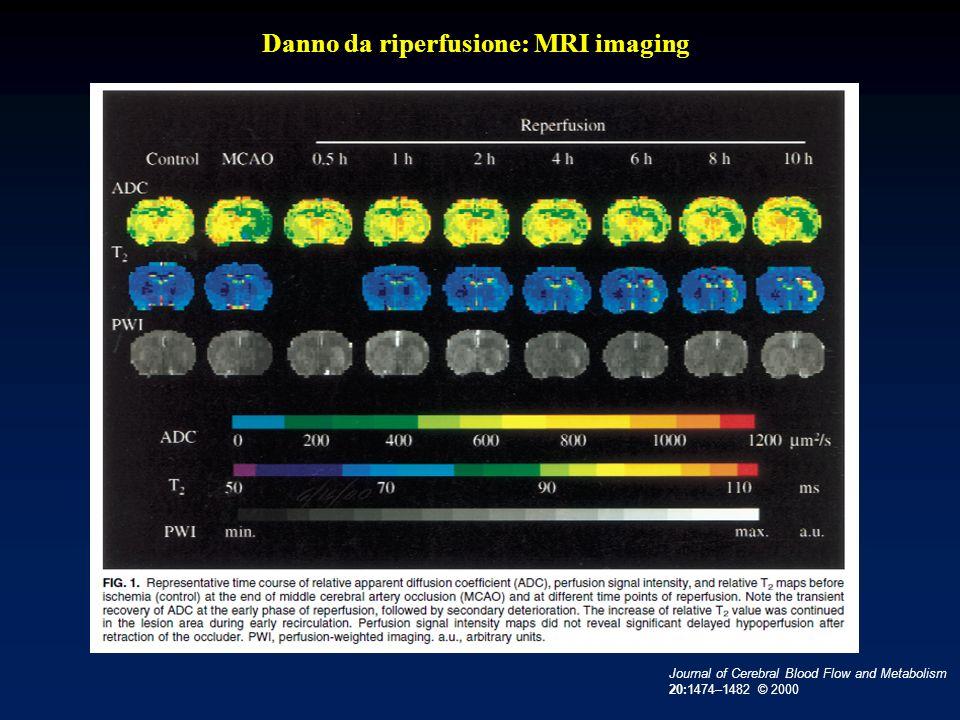 Danno da riperfusione: MRI imaging