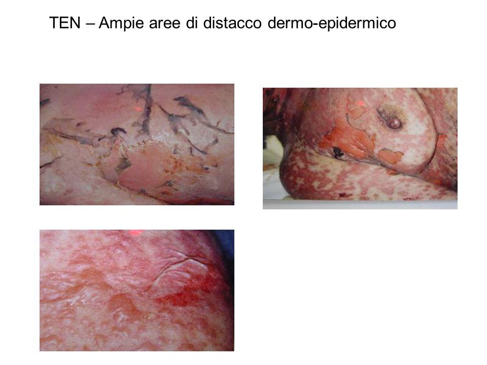 TEN – Ampie aree di distacco dermo-epidermico
