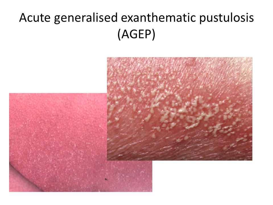 Acute generalised exanthematic pustulosis (AGEP)