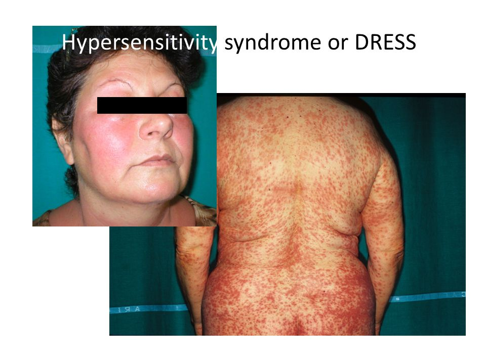 Hypersensitivity syndrome or DRESS