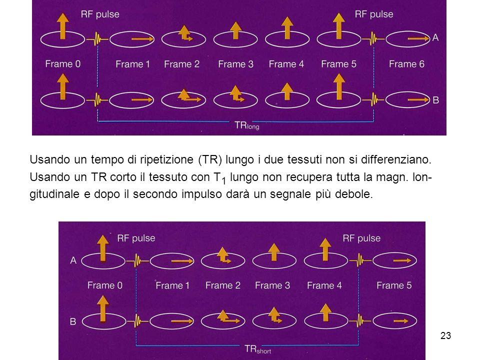 Usando un tempo di ripetizione (TR) lungo i due tessuti non si differenziano.