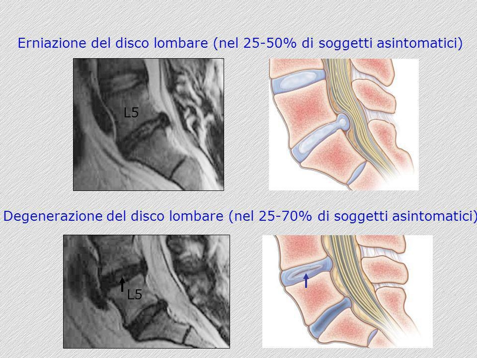 Degenerazione del disco lombare (nel 25-70% di soggetti asintomatici)