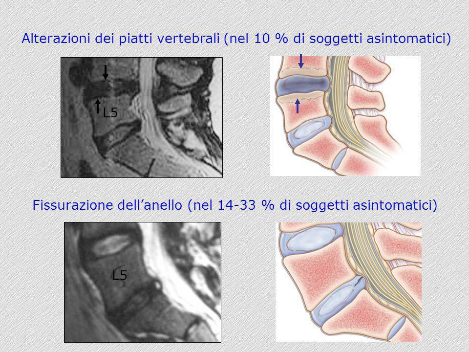 Alterazioni dei piatti vertebrali (nel 10 % di soggetti asintomatici)