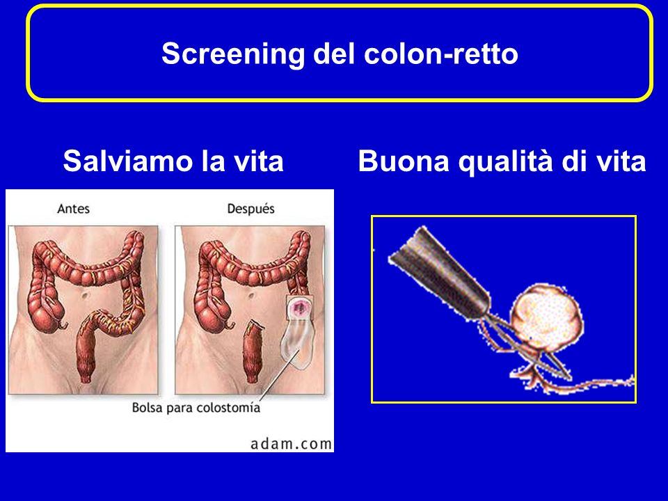 Screening del colon-retto