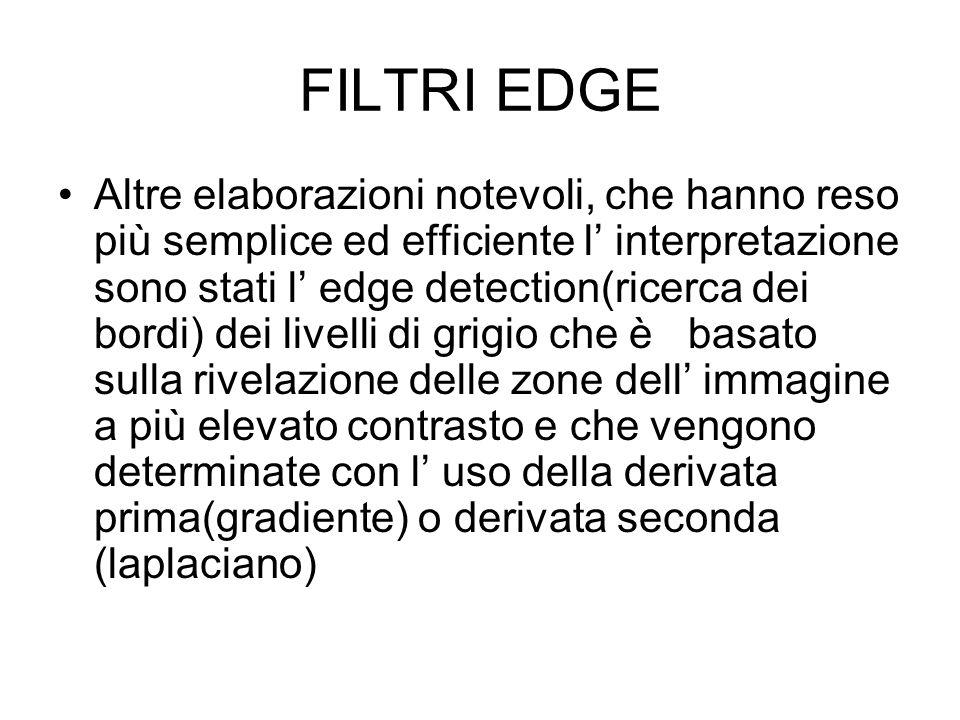 FILTRI EDGE