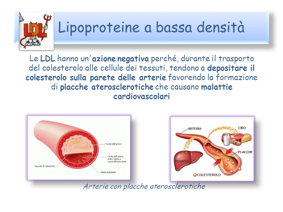 Lipoproteine a bassa densità