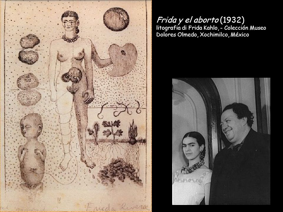 Frida y el aborto (1932) litografia di Frida Kahlo, - Colección Museo Dolores Olmedo, Xochimilco, México.
