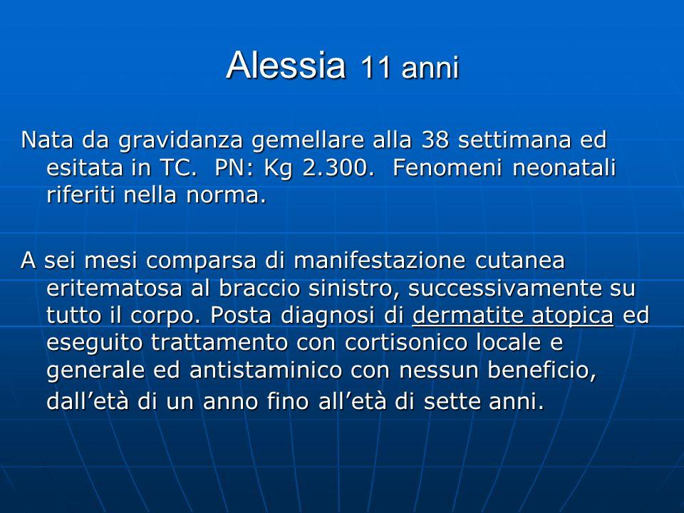 Alessia 11 anni Nata da gravidanza gemellare alla 38 settimana ed esitata in TC. PN: Kg 2.300. Fenomeni neonatali riferiti nella norma.