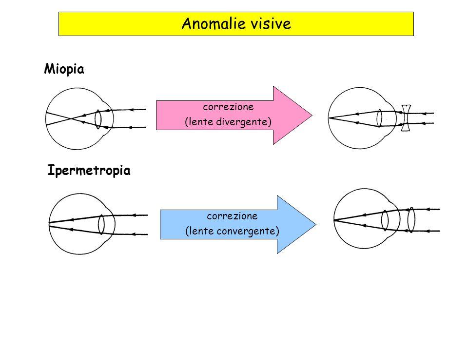 Anomalie visive Miopia Ipermetropia correzione (lente divergente)