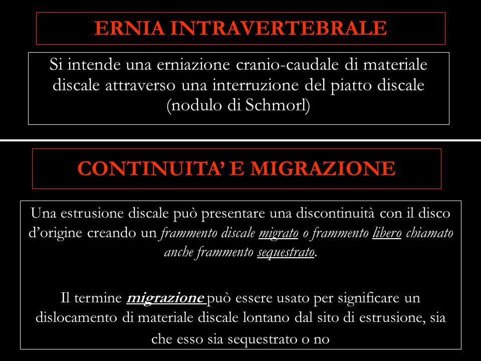 ERNIA INTRAVERTEBRALE