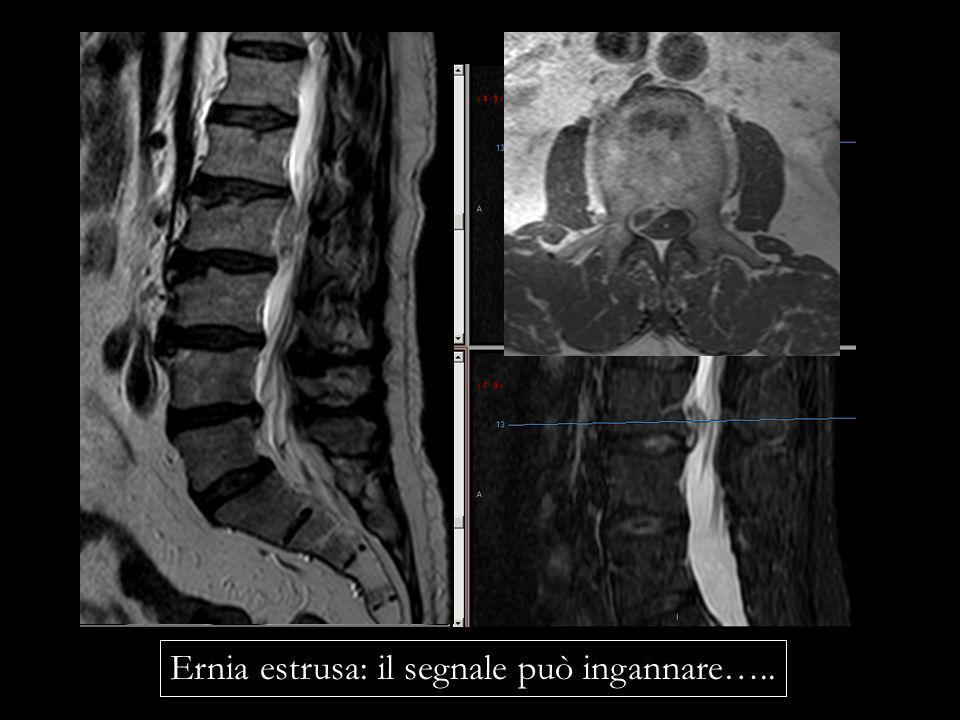 Ernia estrusa: il segnale può ingannare…..