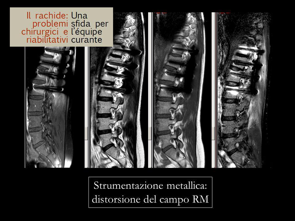 Strumentazione metallica: distorsione del campo RM