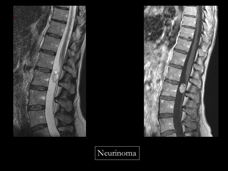Neurinoma
