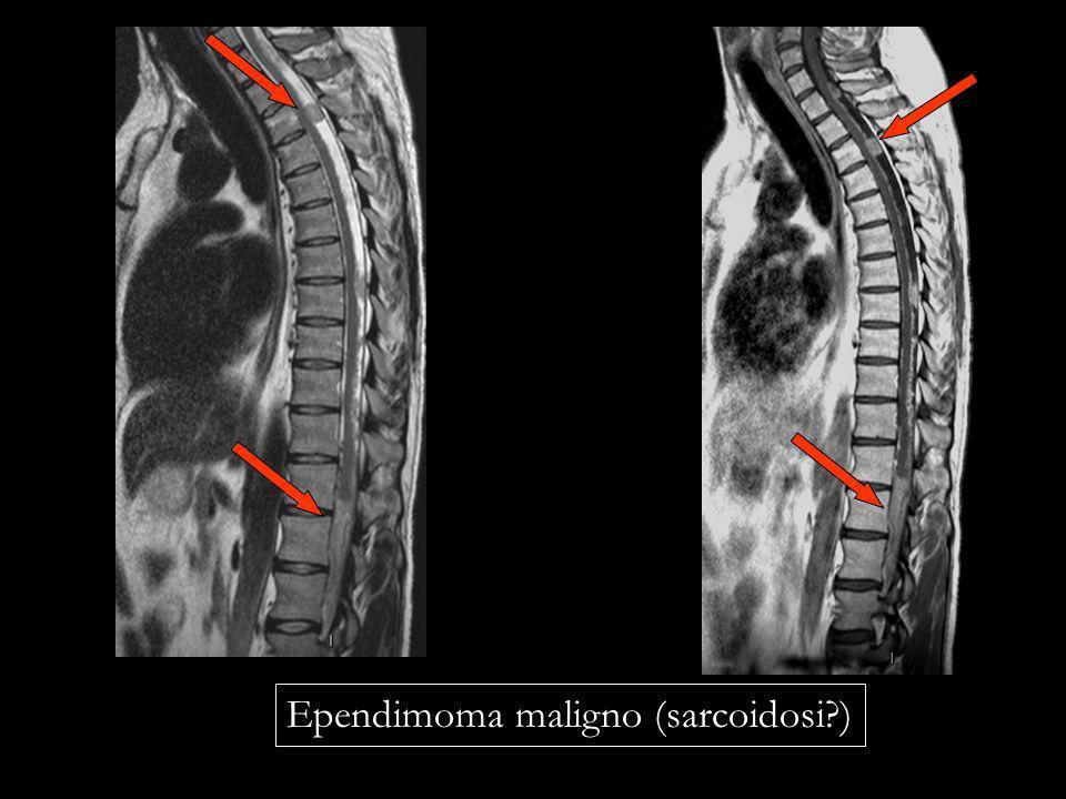 Ependimoma maligno (sarcoidosi )