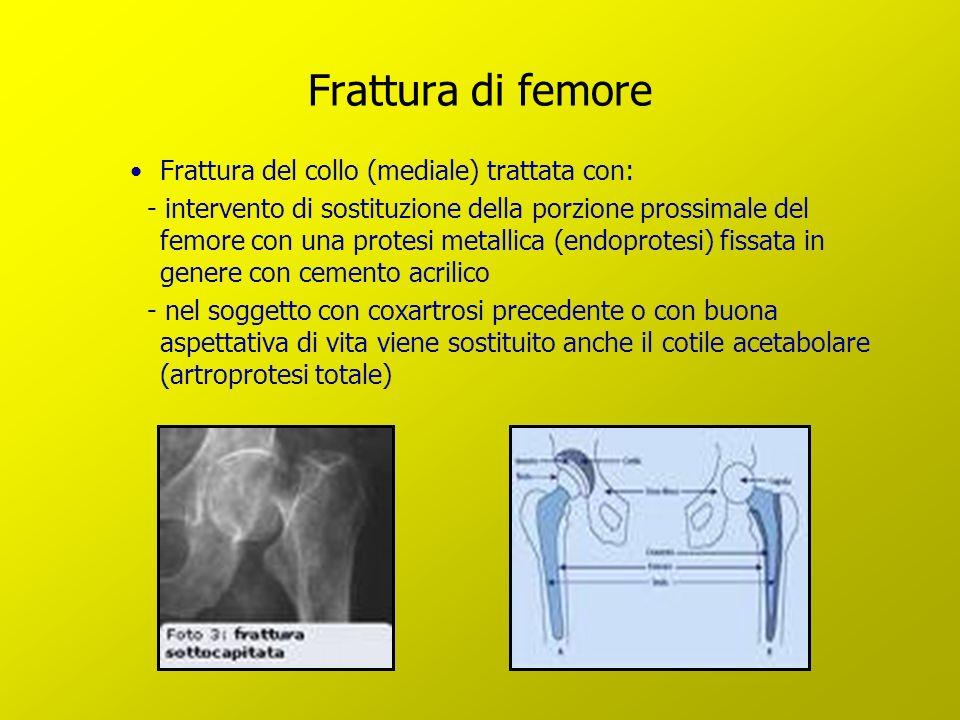 Frattura di femore Frattura del collo (mediale) trattata con: