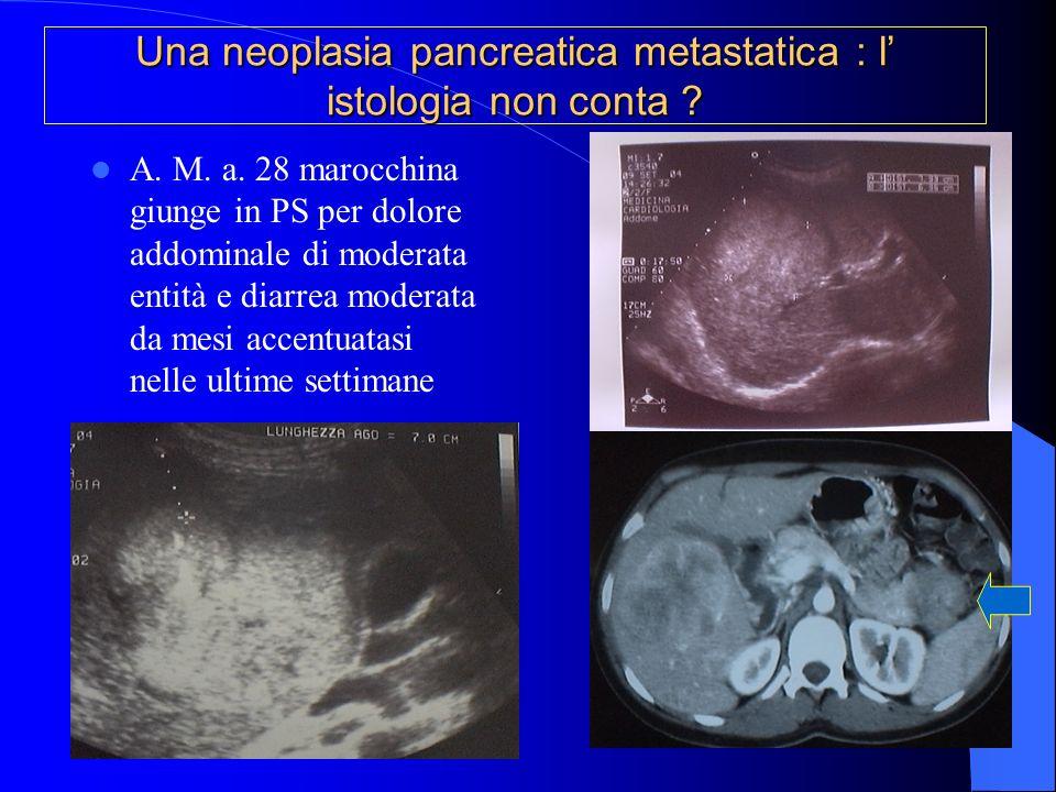 Una neoplasia pancreatica metastatica : l' istologia non conta