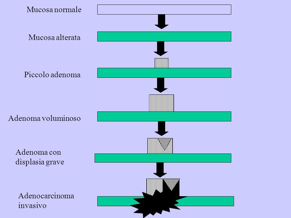 Mucosa normale Mucosa alterata. Piccolo adenoma. Adenoma voluminoso. Adenoma con. displasia grave.