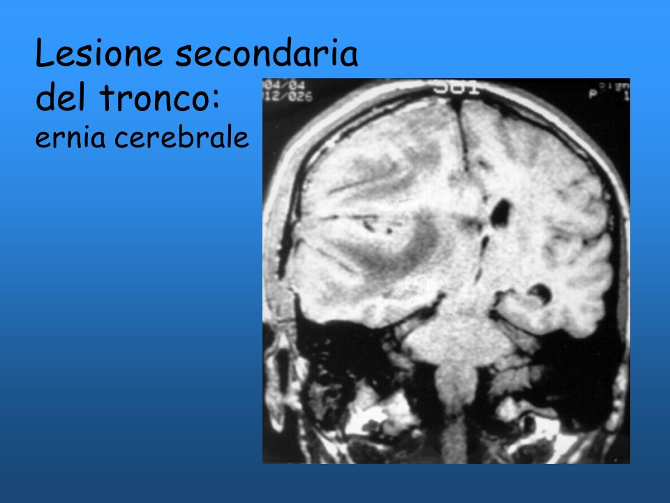 Lesione secondaria del tronco: ernia cerebrale