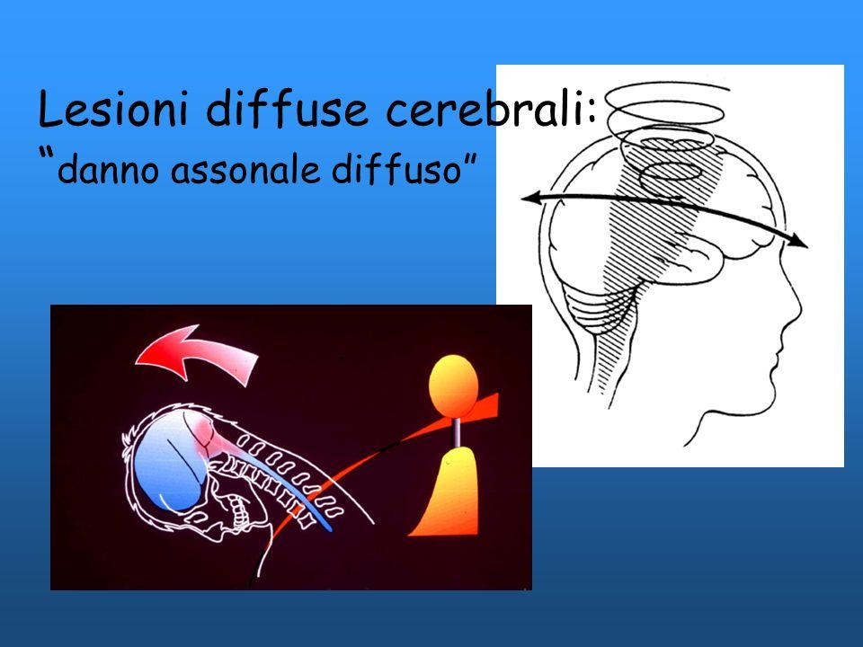 Lesioni diffuse cerebrali: danno assonale diffuso