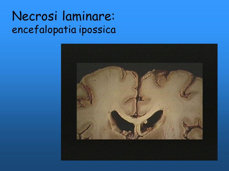 Necrosi laminare: encefalopatia ipossica