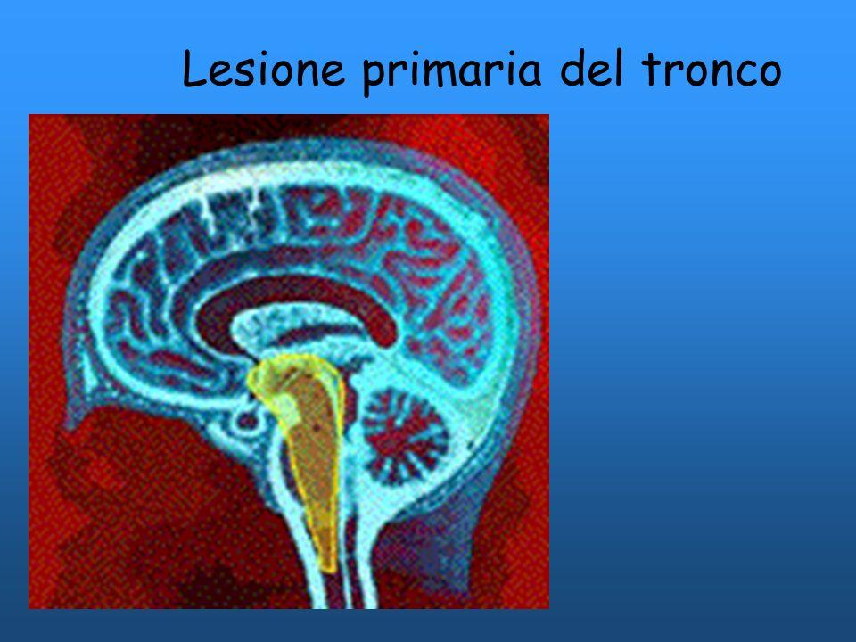 Lesione primaria del tronco