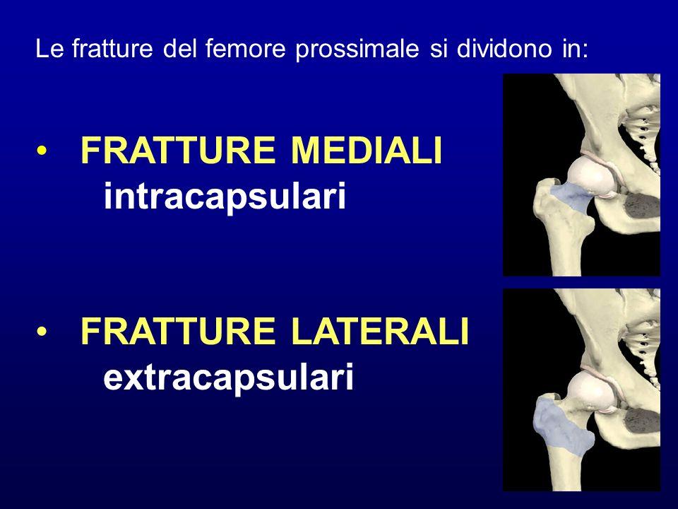 FRATTURE MEDIALI intracapsulari FRATTURE LATERALI extracapsulari