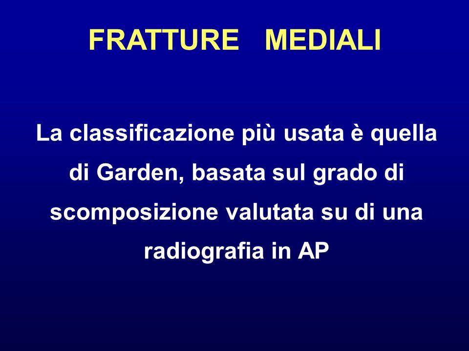 FRATTURE MEDIALI La classificazione più usata è quella di Garden, basata sul grado di scomposizione valutata su di una radiografia in AP.