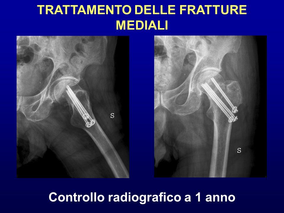 TRATTAMENTO DELLE FRATTURE MEDIALI Controllo radiografico a 1 anno