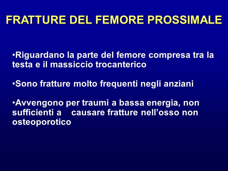 FRATTURE DEL FEMORE PROSSIMALE