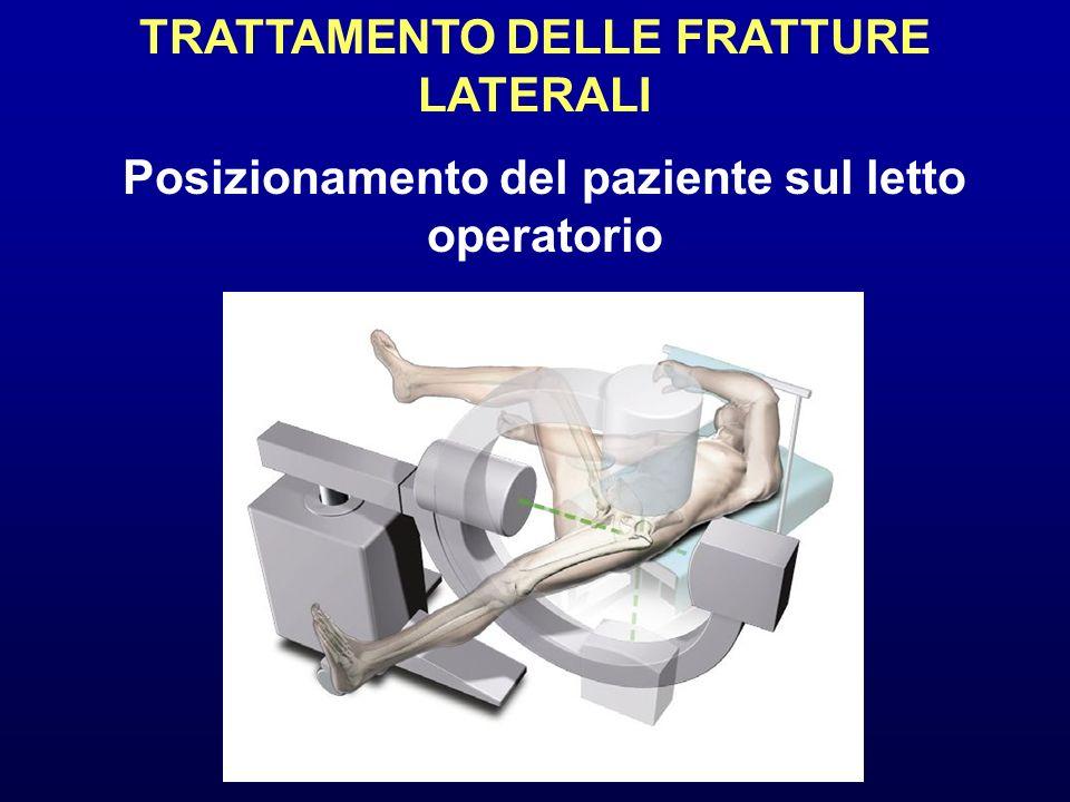 TRATTAMENTO DELLE FRATTURE LATERALI