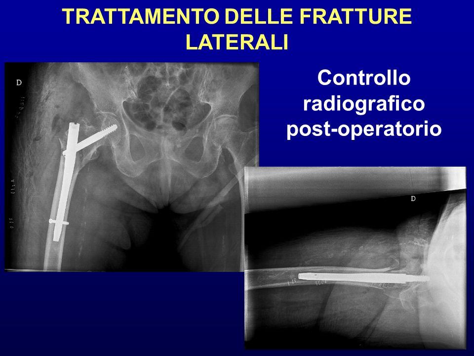 TRATTAMENTO DELLE FRATTURE LATERALI Controllo radiografico