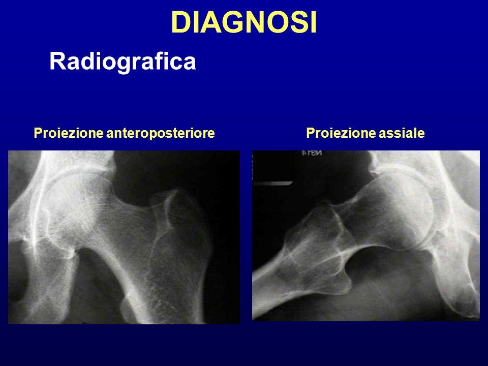 DIAGNOSI Radiografica Proiezione anteroposteriore Proiezione assiale