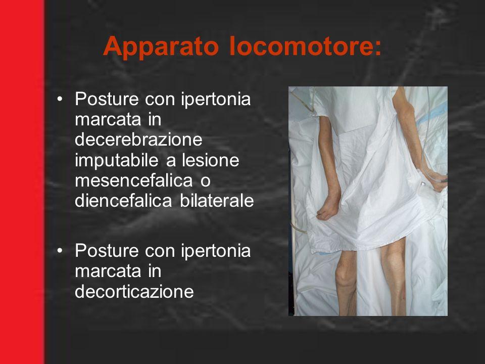 Apparato locomotore: Posture con ipertonia marcata in decerebrazione imputabile a lesione mesencefalica o diencefalica bilaterale.
