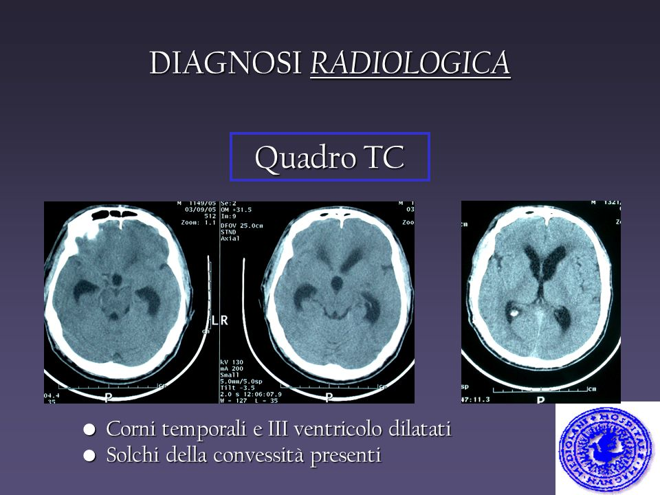 DIAGNOSI RADIOLOGICA Quadro TC